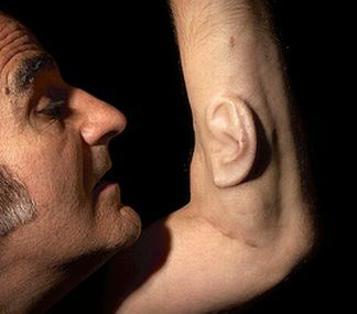 Stelarcs tredje öra (detalj, bildkälla http:/oddstufflab.com/weird/10-weird-body-implants-that-are-irresistibly-cool)